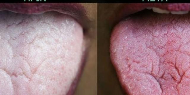 Μήπως μυρίζει άσχημα η αναπνοή σας; Δείτε ποια είναι η αιτία της κακοσμίας του στόματος και πως να την αντιμετωπίσετε