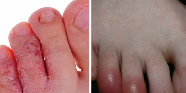 12 σημάδια στα πόδια που δείχνουν ότι η υγεία μας κινδυνεύει - Οι περισσότεροι αγνοούν!