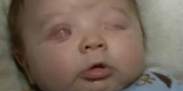 Γονείς πίστευαν ότι το πρόσωπο του μωρού ήταν πρησμένο - 13 ημέρες μετά έμαθαν την φρικτή αλήθεια