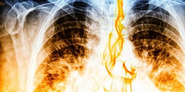 Τσιγάρο - Καρκίνος: Σοκαριστικό βίντεο δείχνει πώς γίνονται οι πνεύμονες από το κάπνισμα