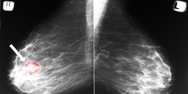 5 προειδοποιητικά σημάδια για τον καρκίνο του μαστού που δεν πρέπει να αγνοήσετε!