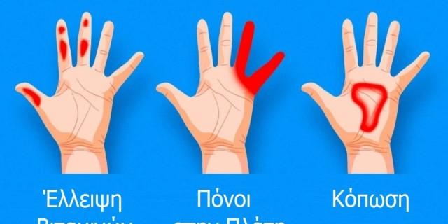 7 σημαντικά πράγματα που δείχνουν τα χέρια για την υγεία μας και δεν θα πρέπει να αγνοήσουμε
