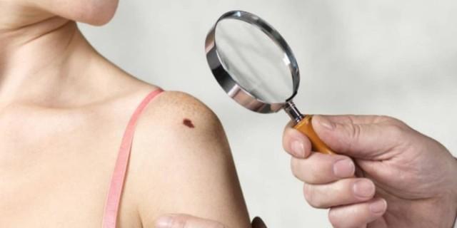 10 αλήθειες για τον καρκίνο του δέρματος που πιθανότατα δε γνωρίζετε
