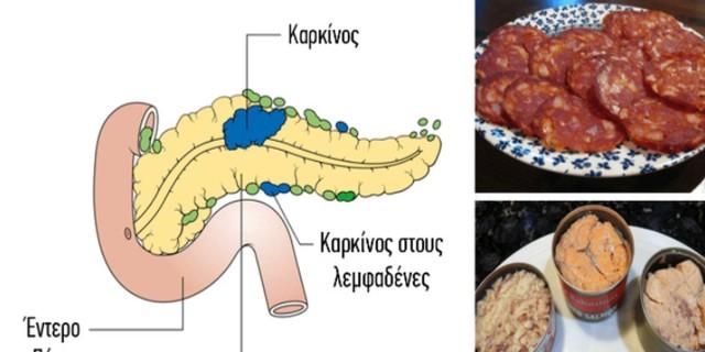 14 τροφές που έχουν αποδειχθεί ότι προκαλούν καρκίνο - Δεν πρέπει να ξαναβάλετε στο στόμα σας