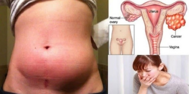9+1 συμπτώματα του σιωπηλού δολοφόνου των ωοθηκών - Τι πρέπει να γνωρίζουν οι γυναίκες