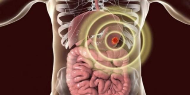 Καρκίνος στομάχου: Διπλάσιος ο κίνδυνος για αυτούς που τρώνε έτσι το φαγητό τους