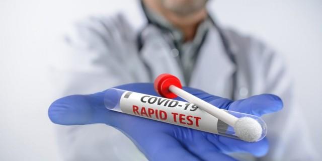 Rapid test: Πού θα γίνονται δωρεάν τεστ την Κυριακή