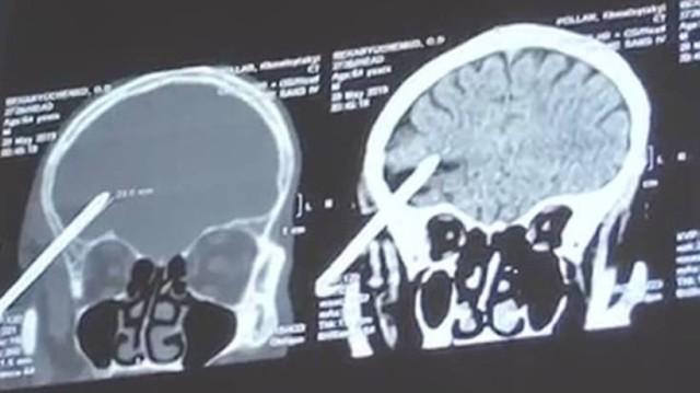 Φρίκη: Κάρφωσε δύο καρφιά στο κεφάλι του για να αυτοκτονήσει έπειτα από καβγά!