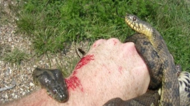 Σε δάγκωσε φίδι; Δες τι πρέπει να κάνεις! Σώζει ζωές!