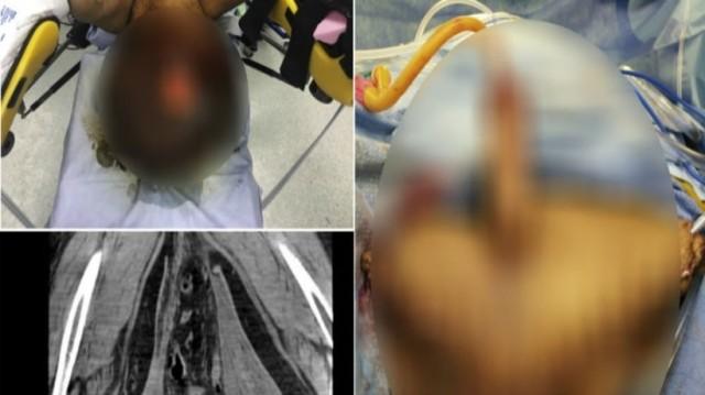 Σοκαριστικό: Του έκοψαν τα γεννητικά όργανα γιατί πρήστηκαν σαν μπαλόνια και σάπισαν! (photos)