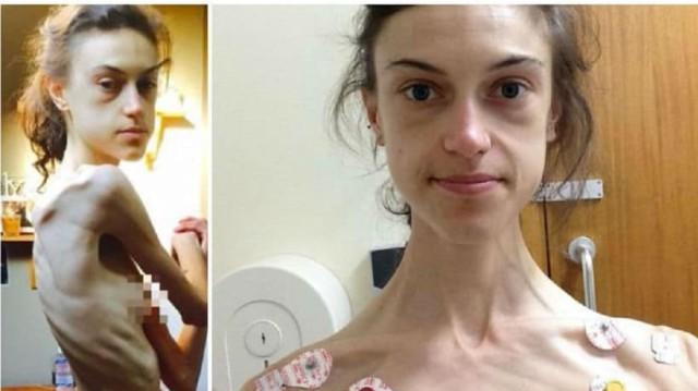 «Όταν μπήκα στην κλινική, ζύγιζα 31 κιλά. Σήμερα είμαι μια κούκλα χάρη στο Instagram»!
