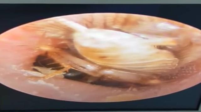 Κατσαρίδα μπήκε στο αυτί μιας γυναίκας, η στιγμή που την αφαιρεί ζωντανή ο γιατρός! (Βίντεο)