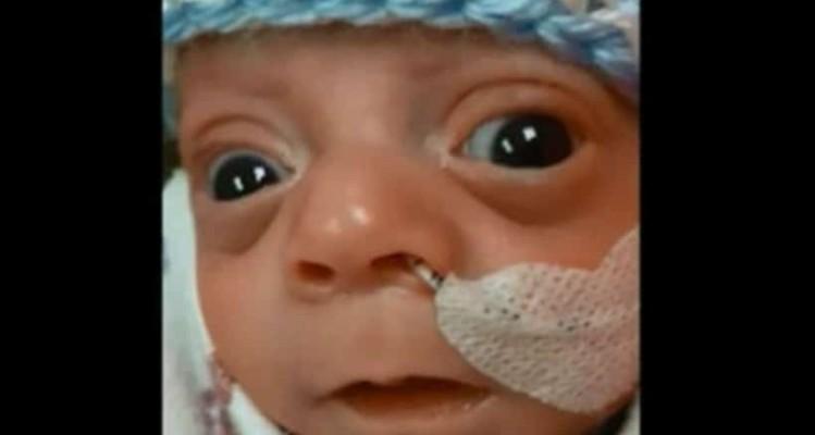 Λιώσαμε: Μωράκι που γεννήθηκε πρόωρα μας χαρίζει το πρώτο χαμόγελο του (video)