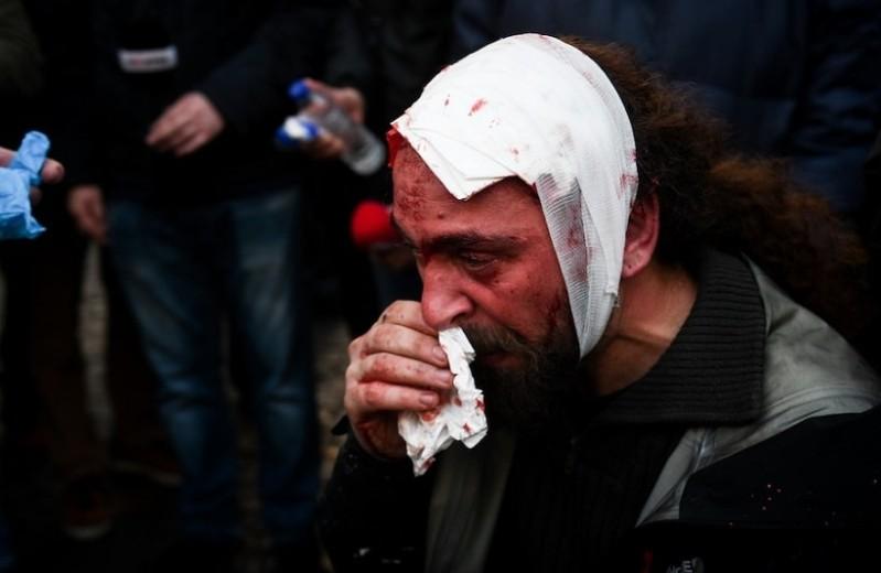 Συλλαλητήριο για τη Μακεδονία: Σοκ προκαλεί η μαρτυρία φωτορεπόρτερ που τραυματίστηκε στο κεφάλι! - «Μας βάραγαν με ρόπαλα, κλωτσιές, μπουνιές»! (Video)