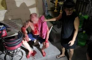 Σοκ! Βρήκαν αυτόν τον παππού καλυμμένο με αίμα... Ο λόγος θα σας κάνει να μείνετε με το στόμα ανοικτό!