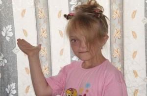 17χρονη έφηβη γεννήθηκε χωρίς μύτη και αριστερό μάτι - Όταν την είδε ο πατέρας της...