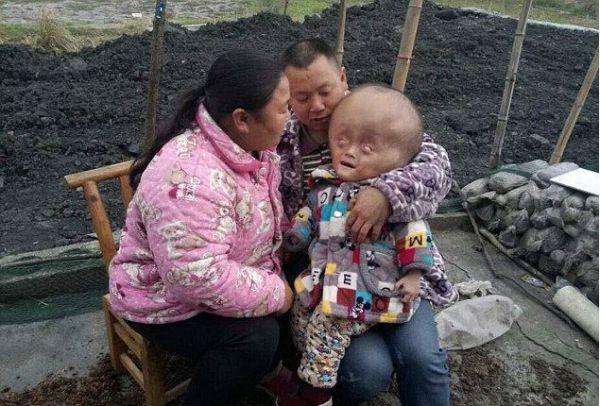 Δραματική έκκληση για βοήθεια από τους γονείς: Το αγόρι με το κεφάλι, που μεγαλώνει ασταμάτητα! (Εικόνες)