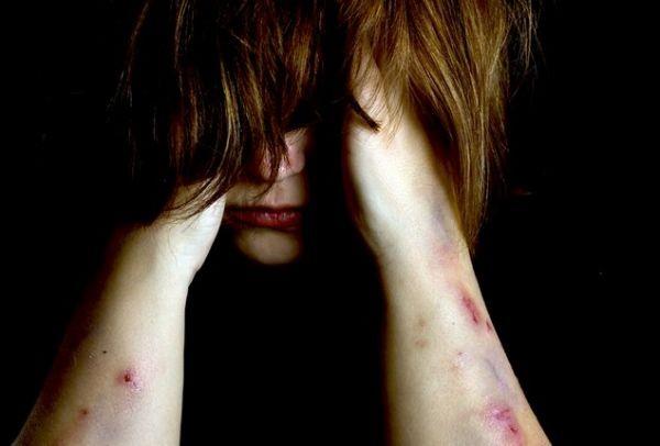 Στοιχεία σοκ για την κακοποίηση των γυναικών: Σχεδόν οι μισές δολοφονίες γίνονται από...!