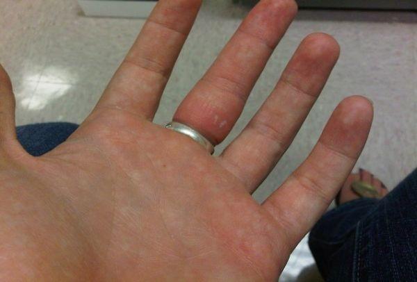 Το γνώριζες; Ποιος είναι το μυστικό κόλπο που κάνουν στα νοσοκομεία για τα δαχτυλίδια που έχουν σφηνώσει στα δάχτυλα; (VIDEO)