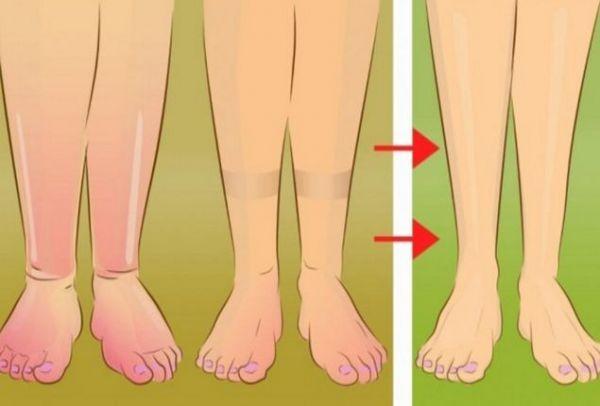 Δώστε προσοχή: Πέντε χρήσιμες συμβουλές για να ανακουφίσετε τα πρησμένα πόδια σας με φυσικό τρόπο!