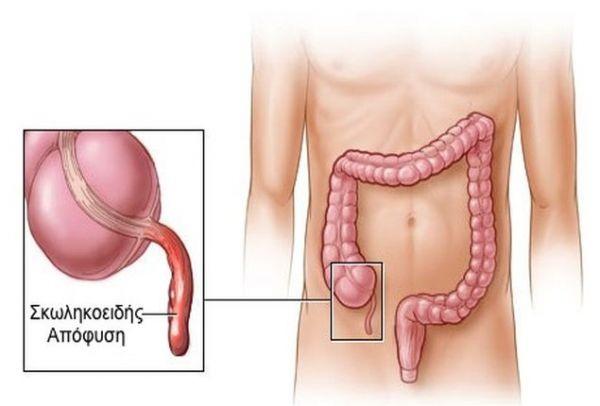 Μεγάλη προσοχή: Αυτά είναι τα πραγματικά συμπτώματα σκωληκοειδίτιδας!