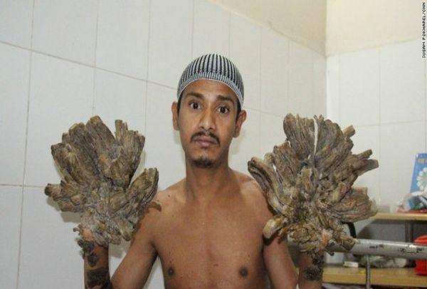 Τον θυμάστε τον άνθρωπο-δέντρο από το Μπαγκλαντές; Δείτε πώς είναι σήμερα, μετά την χειρουργική επέμβαση (Photos)