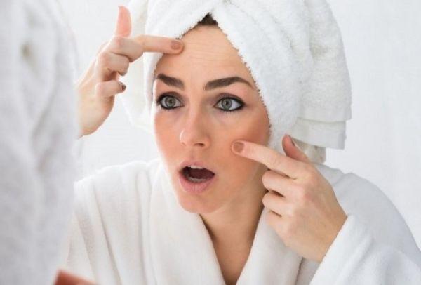 Σπυράκια στο πρόσωπο: Τι πρέπει να προσέξετε για να μην ξαναβγάλετε!
