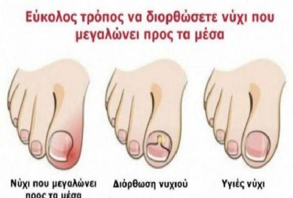 6+1 φυσικοί τρόποι για να κάνετε τα νύχια σας να μην μεγαλώνουν προς τα μέσα. Ο 2ος είναι σωτήριος!