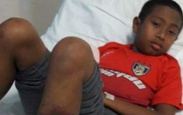 Φρίκη σε σχολείο: Βασάνισαν μέχρι θανάτου 11χρονο! Άφησε την τελευταία του πνοή στο νοσοκομείο (photos+video)