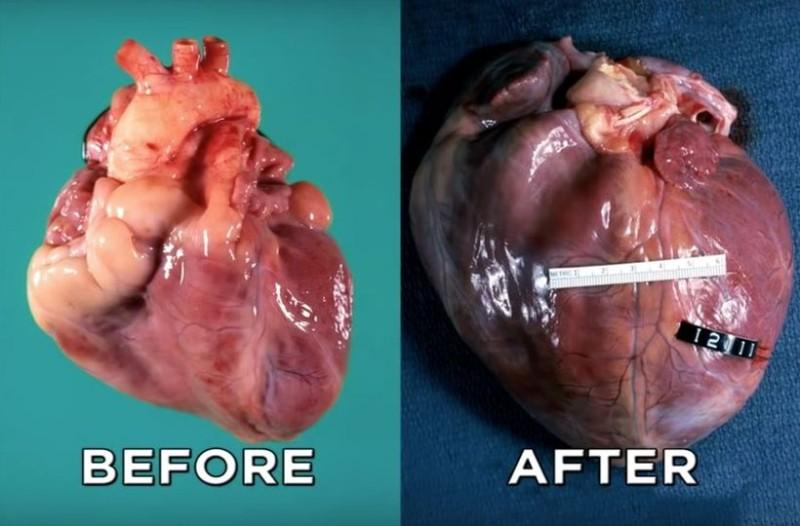 Βίντεο - σοκ: Δείτε πως γίνεται η καρδιά μετά από χρόνια χρήσης κοκαΐνης!