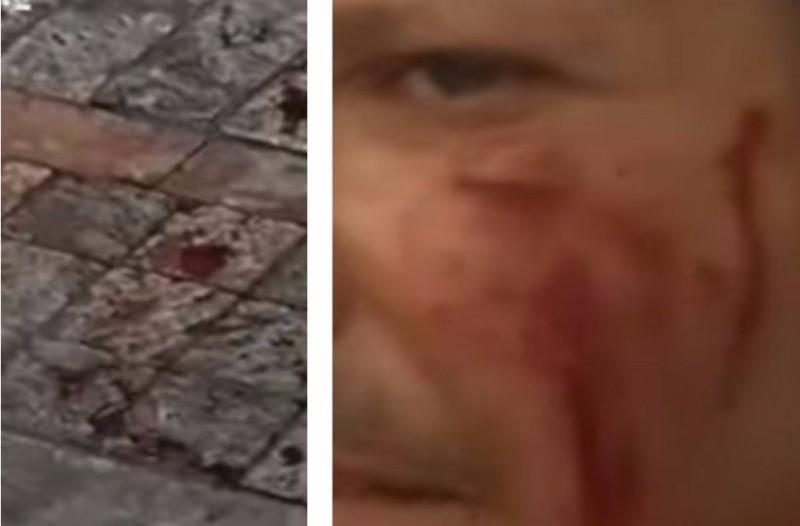 Τραγικό: Κουκουλοφόροι χτύπησαν βάναυσα τουρίστα επειδή ψώνισε Κυριακή! (video)