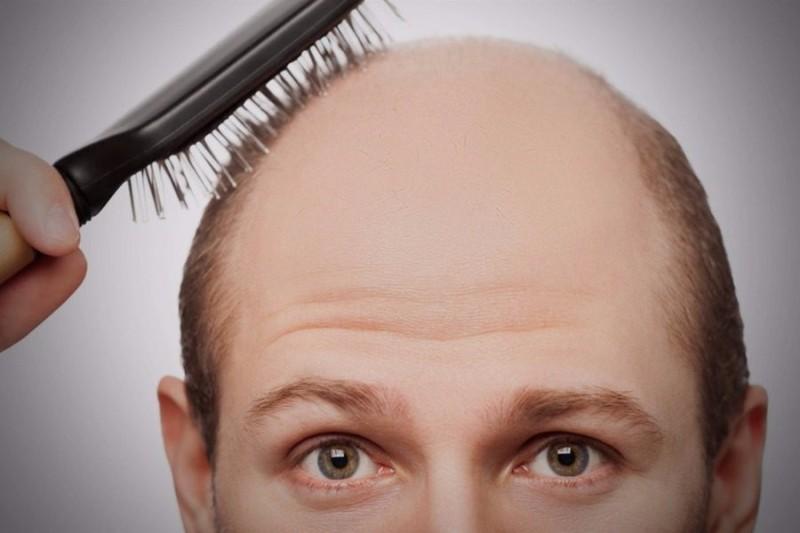 ... μασάζ στο τριχωτό του κεφαλιού μπορεί να είναι επωφελές για εκείνους  που βιώνουν μια σταδιακή μείωση του όγκου των μαλλιών ή τριχόπτωση και  φαλάκρα». 03b450c7c69