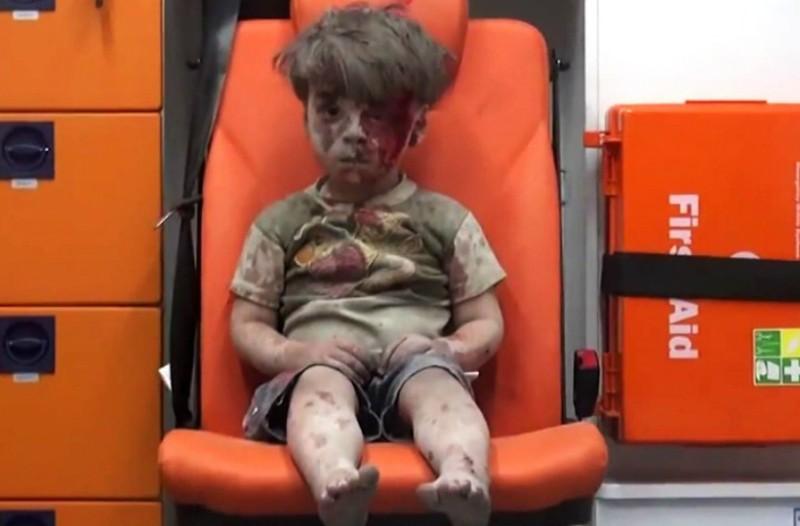 Θα σας «λιώσει» την καρδιά! Δείτε πως είναι ο Ομράν το παιδί «σύμβολο» της Συρίας ένα χρόνο μετά την σοκαριστική διάσωση του! (Photo)