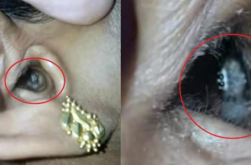 Φρίκη: Πήγε στον γιατρό επειδή είχε τρομερό πονοκέφαλο και αυτό που βρήκανε στο αυτί της... την έκανε να ουρλιάξει (Photos+video)