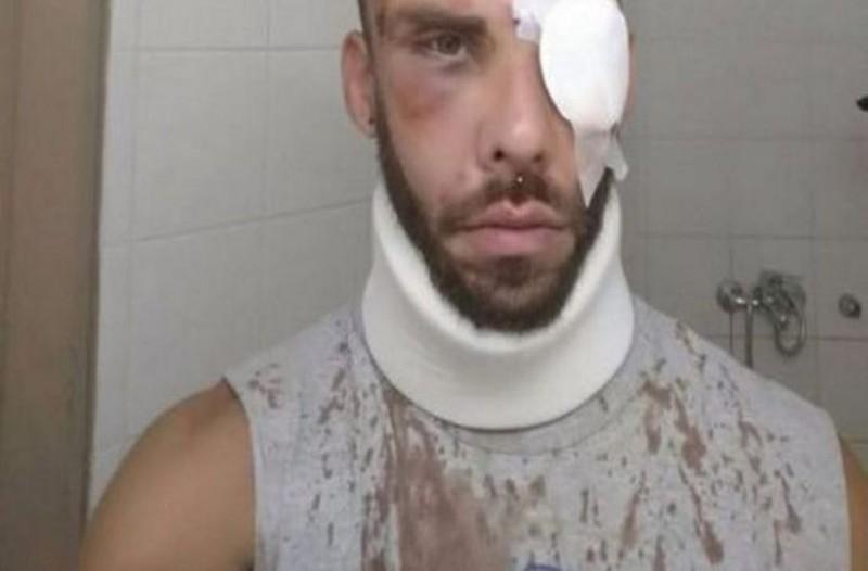 «Ήθελαν να με δολοφονήσουν» - Σοκάρουν ο φοιτητής που ξυλοκοπήθηκε άγρια στο Ρέθυμνο!