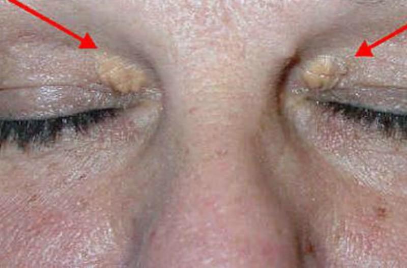 Προσοχή: Τι κίνδυνο αποκαλύπτουν αυτά τα σημάδια στα μάτια!