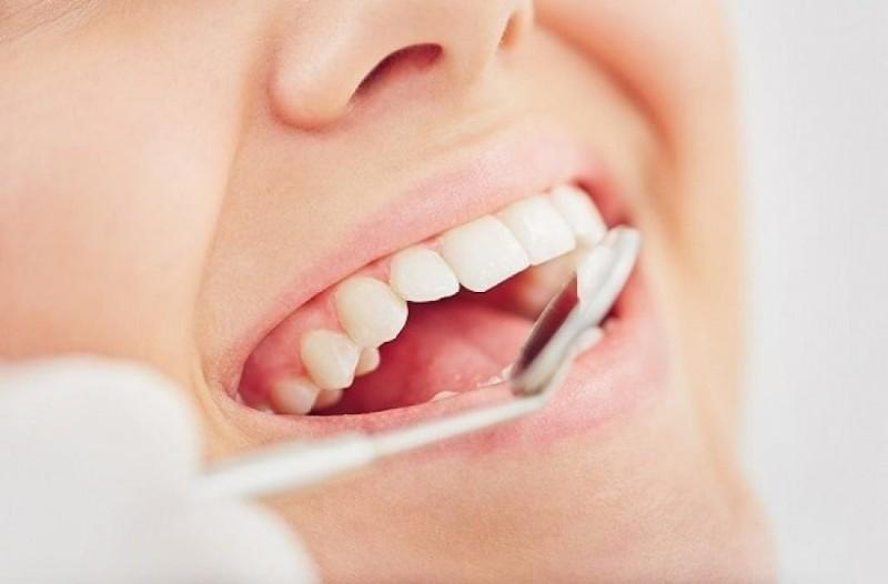 Πώς θα γίνουν τα δόντια σας, αν δεν τα πλένετε για 20 χρόνια!
