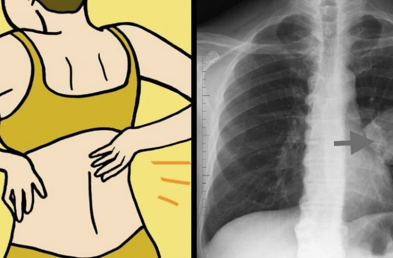 8 πρώιμα σημάδια του καρκίνου του πνεύμονα που κάθε γυναίκα πρέπει να γνωρίζει