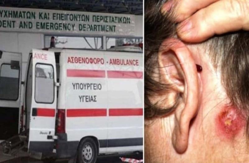 """Συναγερμός στα νοσοκομεία της Ελλάδας: """"Υπερβακτήριο"""" σταφυλόκοκκου εξαπλώνεται ραγδαία στην χώρα!"""