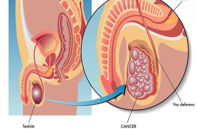 Καρκίνος στους όρχεις: Αν έχεις αυτά τα συμπτώματα τρέξε απευθείας στον γιατρό!
