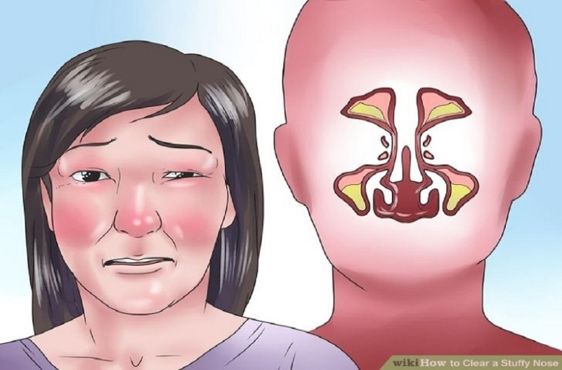 Ξεβουλώστε τη μύτη σας και αναπνεύστε ελεύθερα με αυτό το απλό κόλπο! - Δουλεύει 100% και σας ανακουφίζει στη στιγμή!