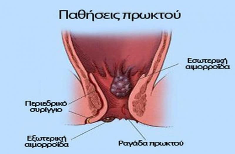 Xnxxx μασάζ σεξ