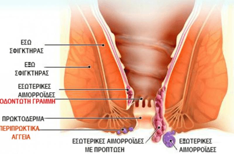 Πως μπορεί να προληφθούν οι αιμορροΐδες; Τι να κάνετε για την αντιμετώπιση στο σπίτι;