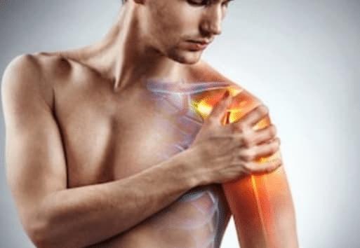 Ασβεστοποιός τενοντίτιδα ώμου και φυσικοθεραπεία