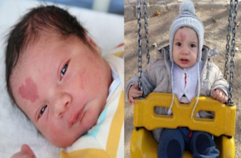Μωράκι γεννήθηκε με ένα σημάδι σε σχήμα καρδιάς και όλος ο κόσμος το έχει λατρέψει