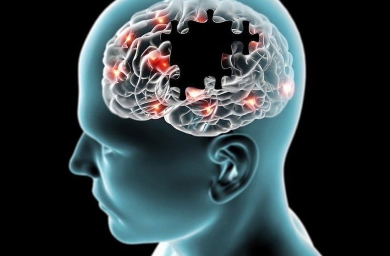 Μεγάλη προσοχή: Αυτά είναι τα πρώτα συμπτώματα της νόσου του Αλτσχάιμερ!