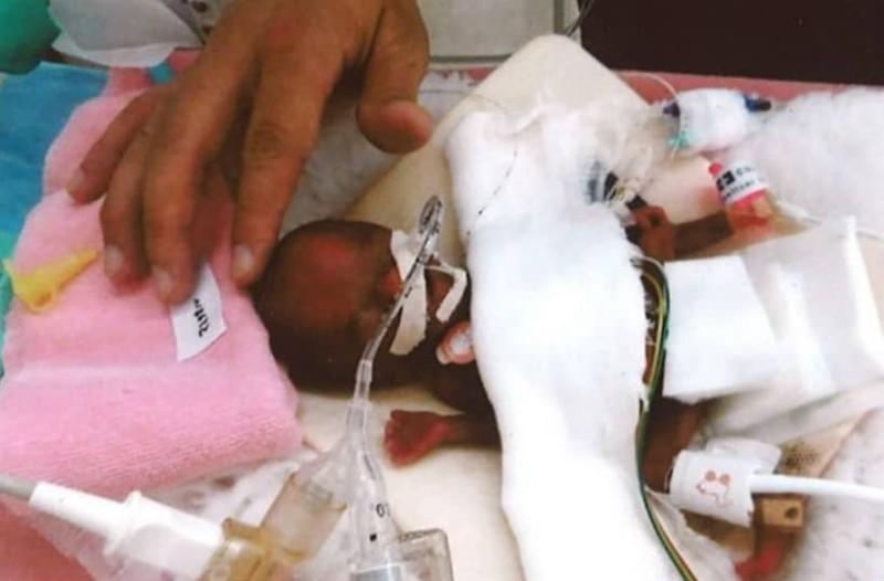 Απίστευτο: Νεογέννητο γεννήθηκε 258 γραμμάρια και έζησε!
