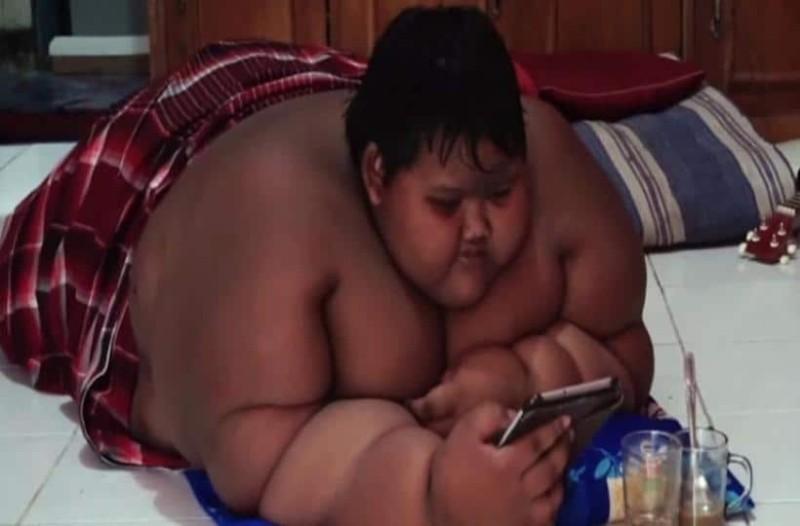 Δείτε πως είναί σήμερα το πιο χοντρό παιδί του κόσμου!