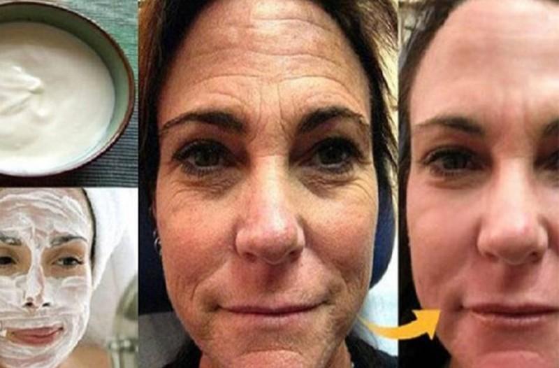 Χιλιάδες γυναίκες χρησιμοποιούν αυτή την σπιτική κρέμα για να ανανεώσουν την επιδερμίδα τους και να διώξουν τις ρυτίδες! Σε μια νύχτα και ξυπνήστε 10 χρόνια νεότερη!