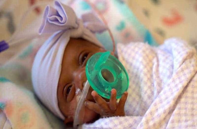 Το κοριτσάκι που γεννήθηκε 45 γραμμάρια βγήκε νικήτρια στη ζωή μετά από 5 μήνες!
